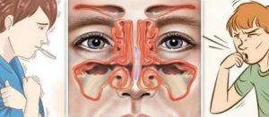 Внутренний насморк в одной ноздре
