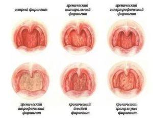 Пузырьки в горле без температуры