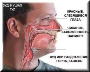 Постоянная заложенность носа, частые боли в горле