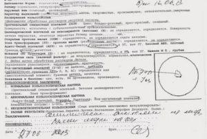 Диагноз кольпоскопии LSIL