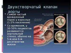 Двухстворчатый клапан аорты