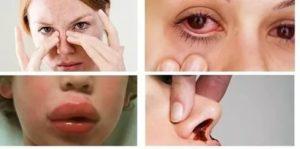 При гайморите гнойное выделение из глаза