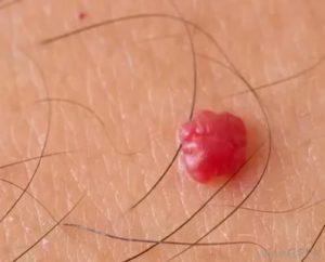 Гемангиома головки полового члена