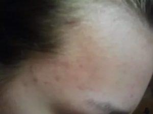 Странная сыпь на щеках и предплечьях ребенка, дерматолог не помог