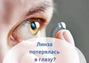 Пропала линза из глаза