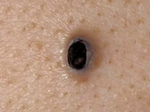 На спине какая-то черная точка с уплотнением внутри