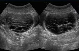 Двухкамерная киста с кровотоком в перегородке