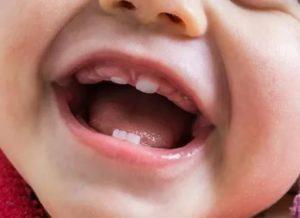 Прорезывание первого зуба не по порядку
