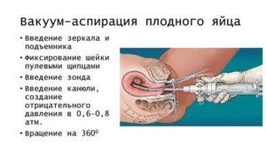 Вакуумный аборт после замершей беременности