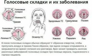 Диагноз рак голосовых связок. После облучения сильно болит горло