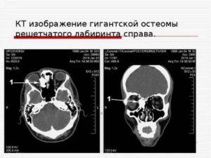 Почему на рентгене не прослеживается решетчатый лабиринт?