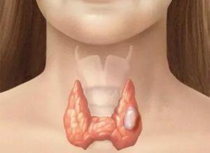 Уплотнения в горле