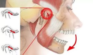 После удара в челюсть болит ухо