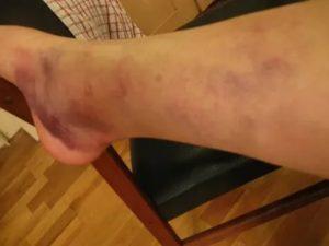 Ушиб колена -гематомы по всей ноге распространяются