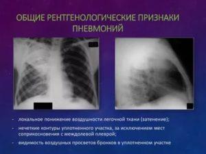 Признаки бронхита на рентгене