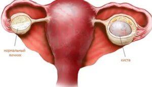 Эндометриоидная ли у меня киста?