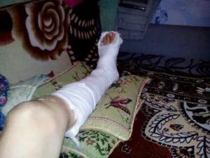Порез ноги болгаркой