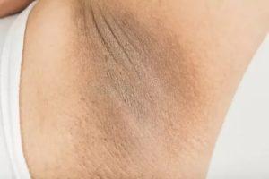 Неровная кожа на подмышках