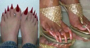 Ужасные ногти на ногах