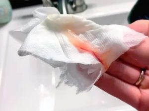 Прожилки крови в выделениях