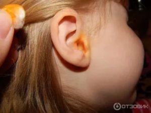 Из уха течет розовая жидкость