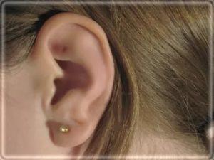 Пятно на мочке уха