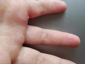 Пупырышки на ладонях не чешутся