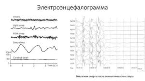 Расшифровать результаты ЭЭГ, РЭГ