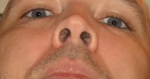 Пузырь с жидкостью в носу