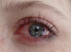 Покраснение глаза после наращивания ресниц