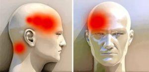 Головная боль, давящая на глаз, при беременности