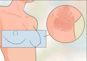Покраснение между грудями
