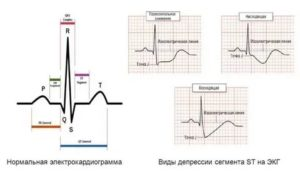 Элевация и депрессия сегмента ST