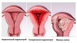 Не растет эндометрий