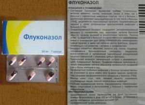 Прием флуконазола перед беременностью (ЭКО)