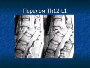 Компрессионный перелом Th12 L1 - есть или нет?