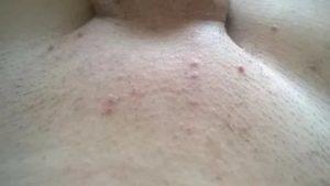 Зуд половых губ после бритья