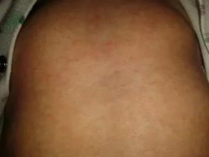 Высыпания у ребёнка на груди и спине