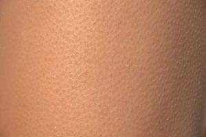 Кожа у ребёнка 9 лет как будто в мурашках