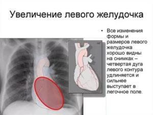 Увеличены размеры левого желудочка у ребенка