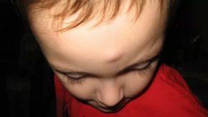 Уплотнение на щеке после ушиба и синяка