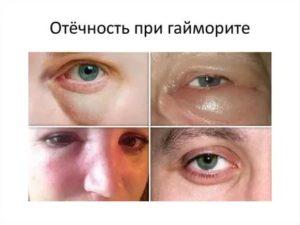 Не проходят отеки лица после гайморита