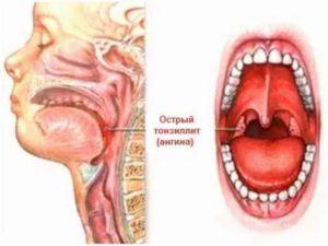 Болит горло, припухли гланды, сильно болит голова и температура