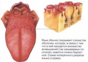 Болит горло и на языке появились болячки