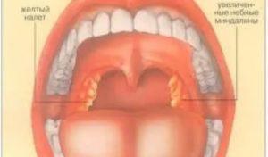 Постоянно болит горло, белый налет