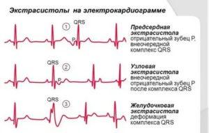 Желудочковая экстрасистолия, низкий пульс