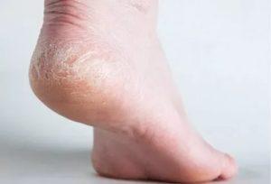 Зуд, шелушение кожи ног и неприятный запах