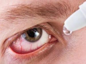 Попадание мази в глаз