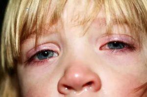 Конъюнктивит и сыпь