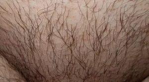 Выпадение волос на лобке